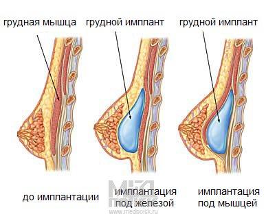 Грудные импланты - варианты расположения