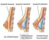 Грудные импланты